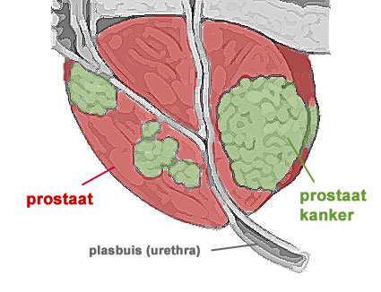 seks en prostaatkanker