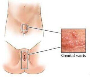 Genital-Warzen